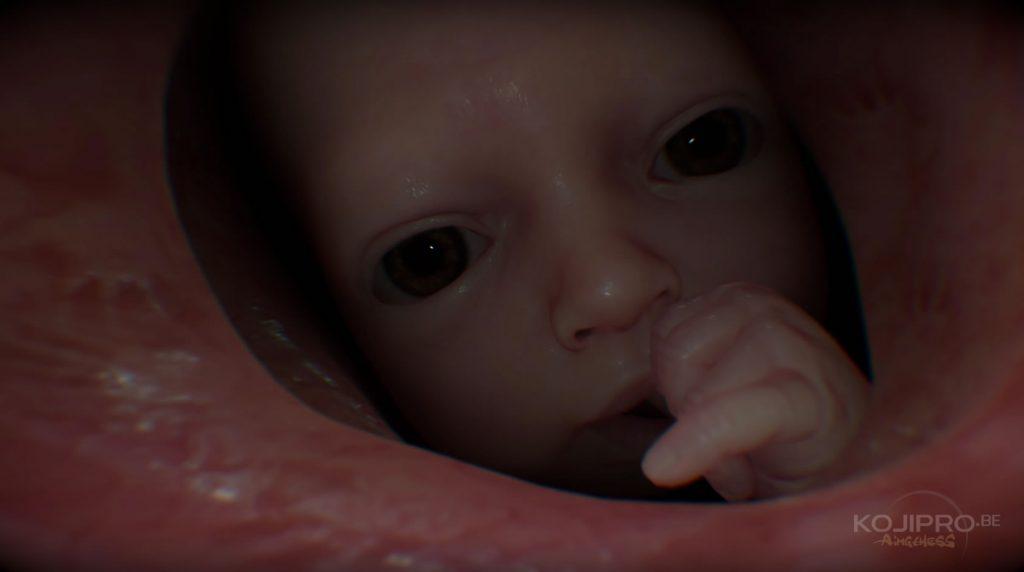 Un bébé en bonne santé apparaît dans les entrailles de Sam.